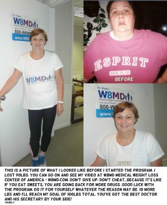 Before and after weight loss with W8MD